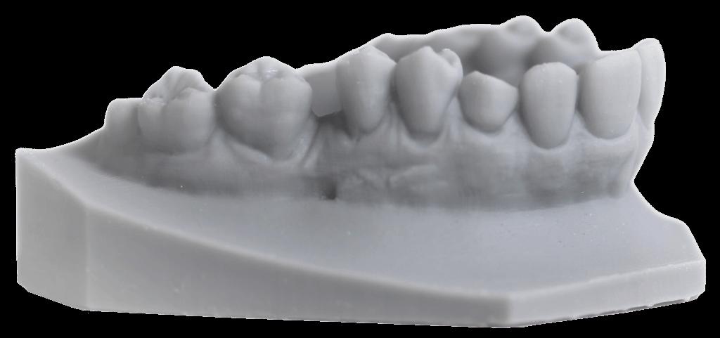 3d-printed-teeth