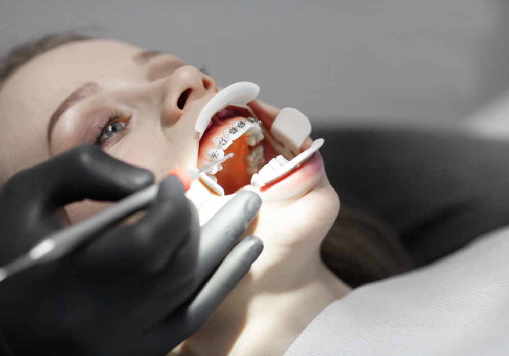 masters orthodontics during ttm